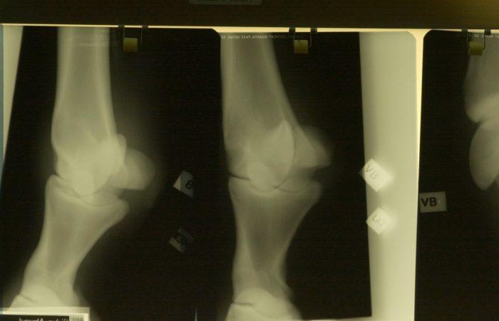 Röntgenbilder av leder